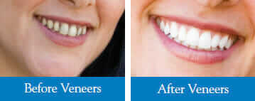Veneers Before and After images